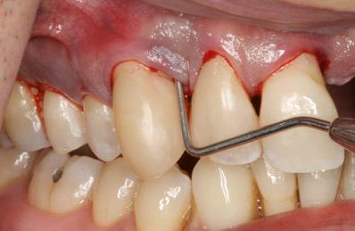 kelowna dental solutions gum disease